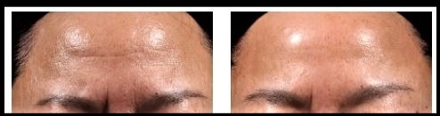 Neostrata Before and After